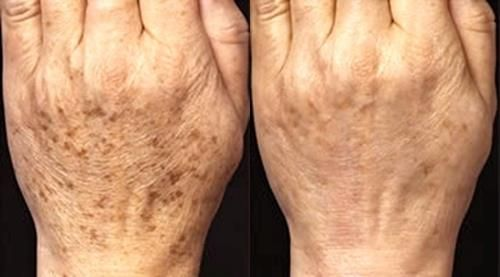 topical application of apple cider vinegar to age spots